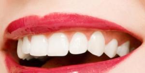 dentisti a torino