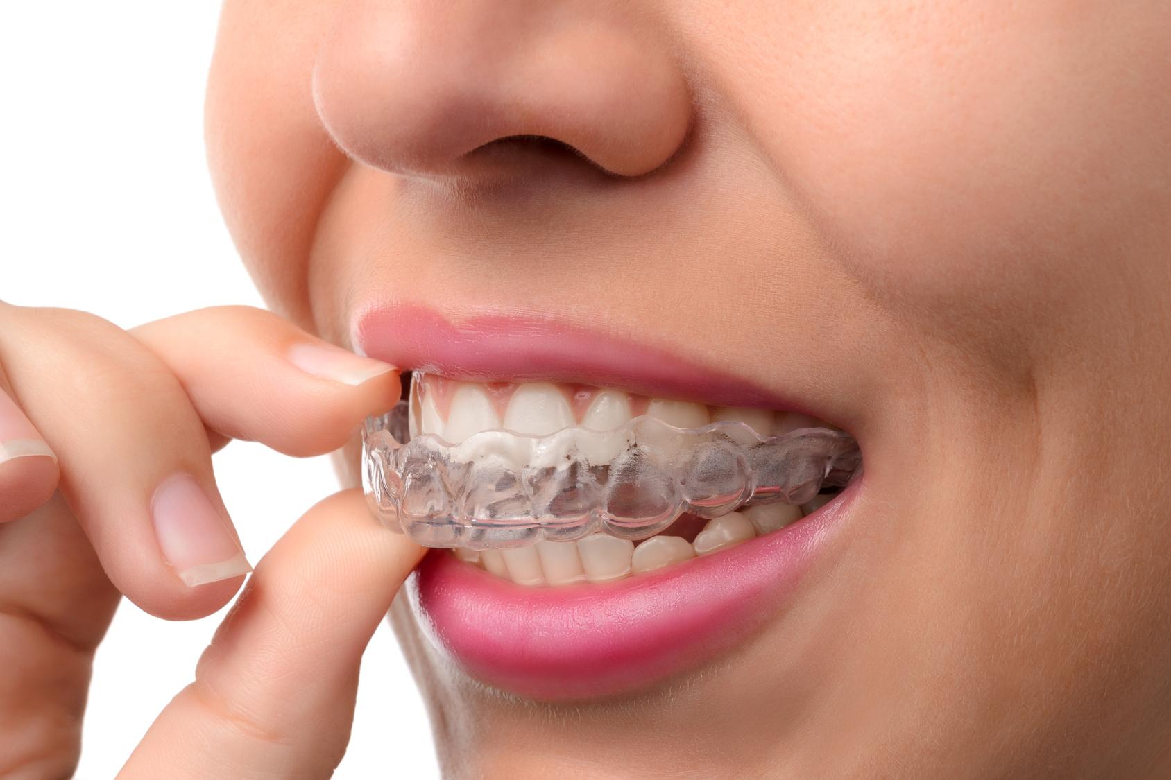 Ortodonzia bimbi